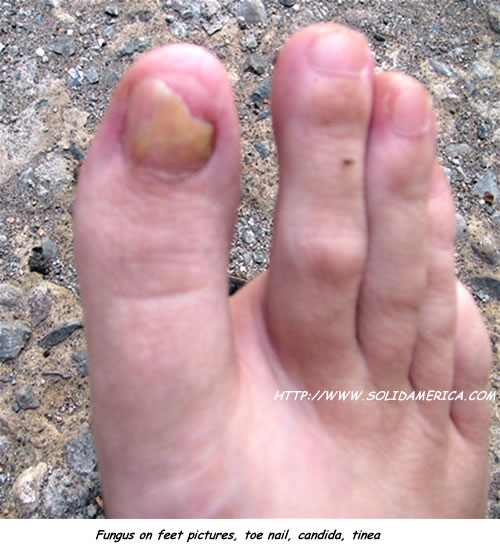 fungus on feet pictures toenail candida tinea