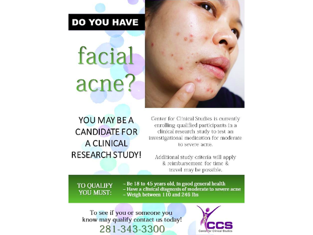 Only If Have Acne Do You And Age From 19 to 45?