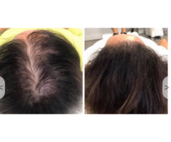 Hair Loss Treatment For Women and Men